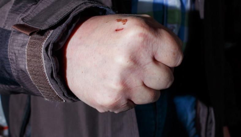 ВПетрозаводске юного  человека безжалостно  избили вкафе