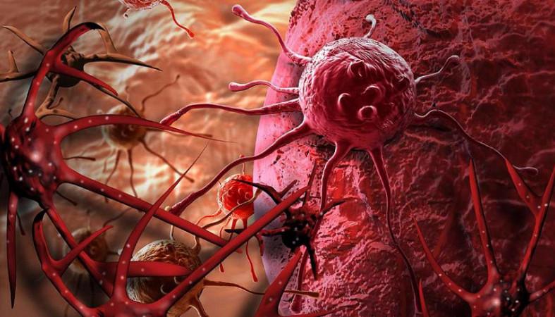 Основным методом профилактики рака является здоровый стиль жизни — Ученые