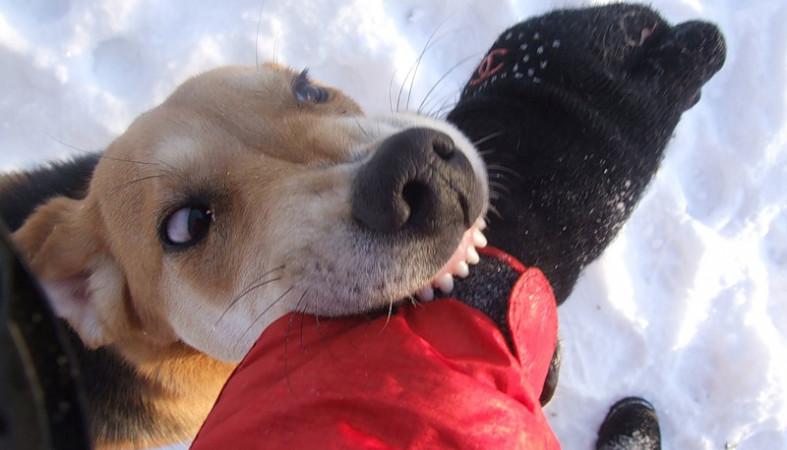ВКарелии хирурги спасли руку искусанной собакой женщине
